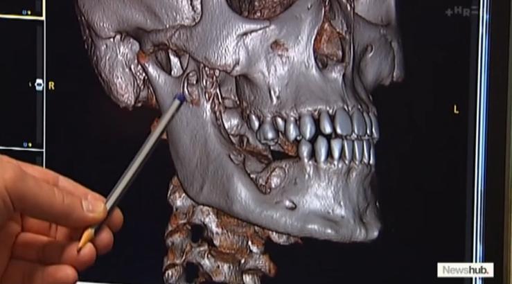 3d model of patient's jaw